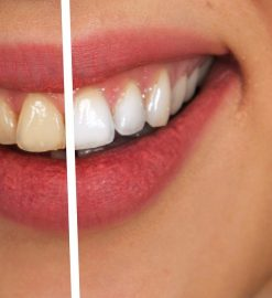 Take Care Of Your Smile: